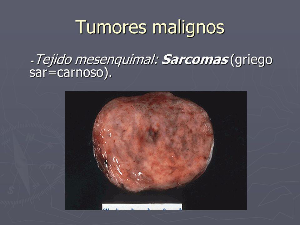 Tumores malignos - Tejido mesenquimal: Sarcomas (griego sar=carnoso). - Tejido mesenquimal: Sarcomas (griego sar=carnoso).