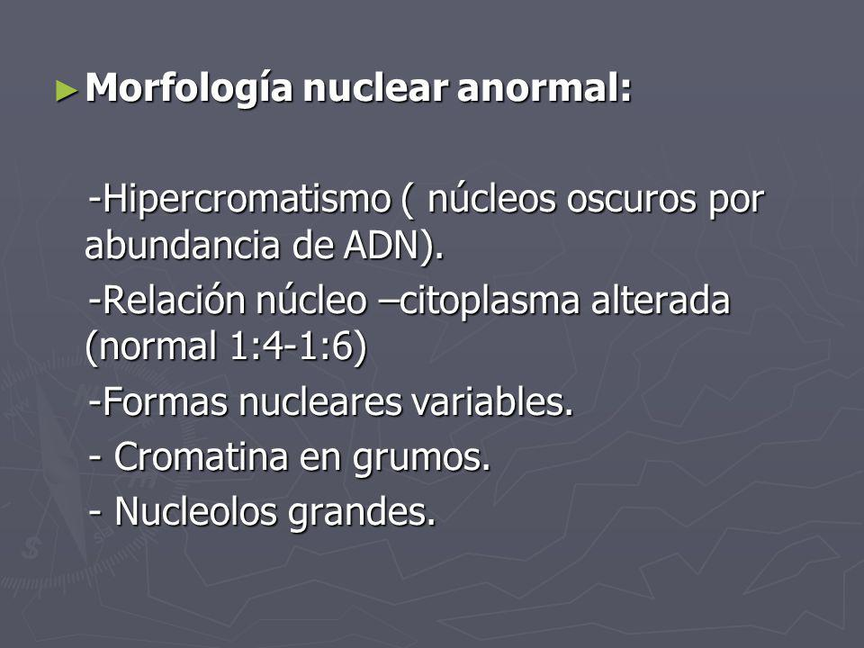 Morfología nuclear anormal: Morfología nuclear anormal: -Hipercromatismo ( núcleos oscuros por abundancia de ADN). -Hipercromatismo ( núcleos oscuros