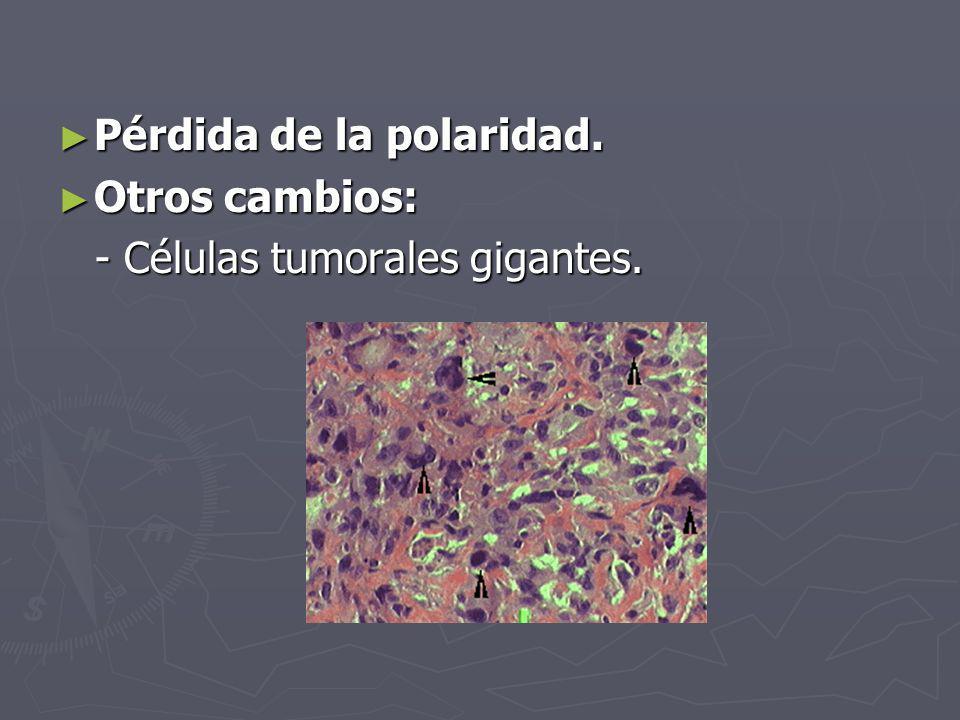 Pérdida de la polaridad. Pérdida de la polaridad. Otros cambios: Otros cambios: - Células tumorales gigantes. - Células tumorales gigantes.