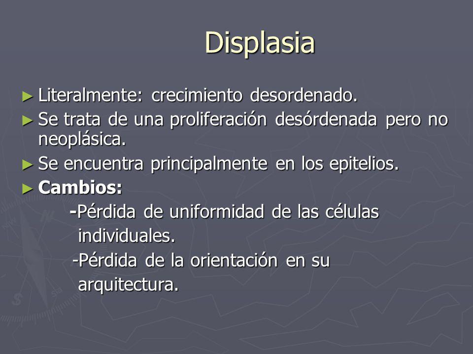 Displasia Literalmente: crecimiento desordenado. Literalmente: crecimiento desordenado. Se trata de una proliferación desórdenada pero no neoplásica.
