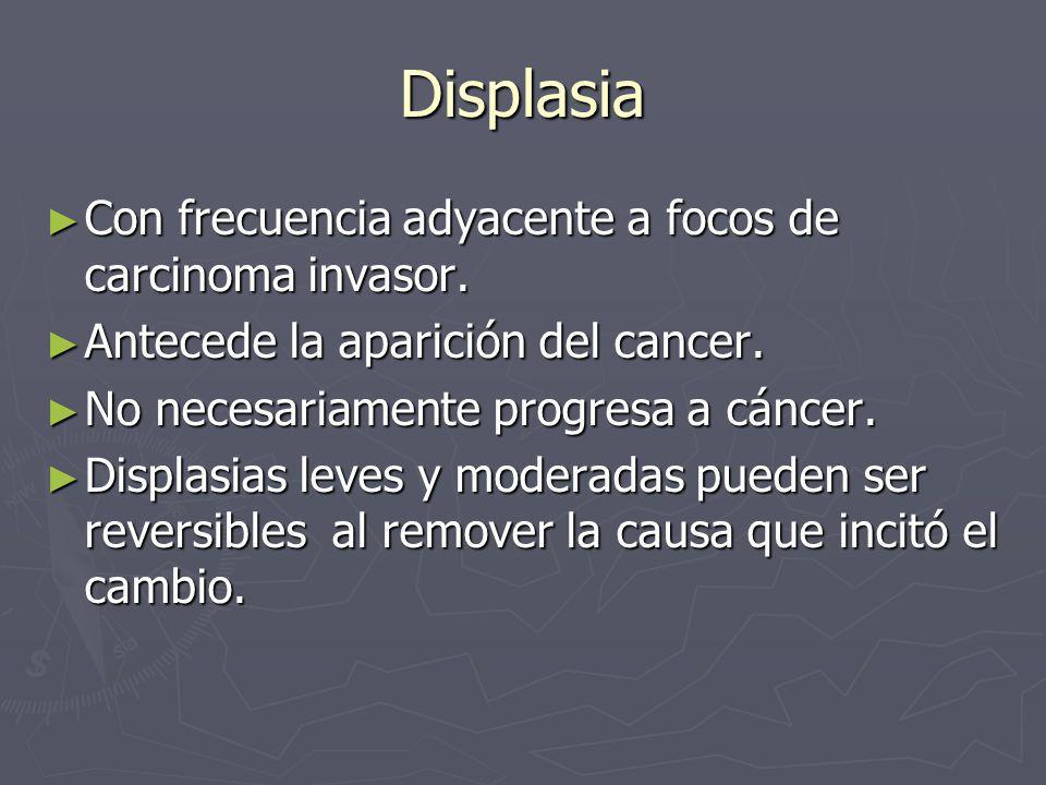 Displasia Con frecuencia adyacente a focos de carcinoma invasor. Con frecuencia adyacente a focos de carcinoma invasor. Antecede la aparición del canc