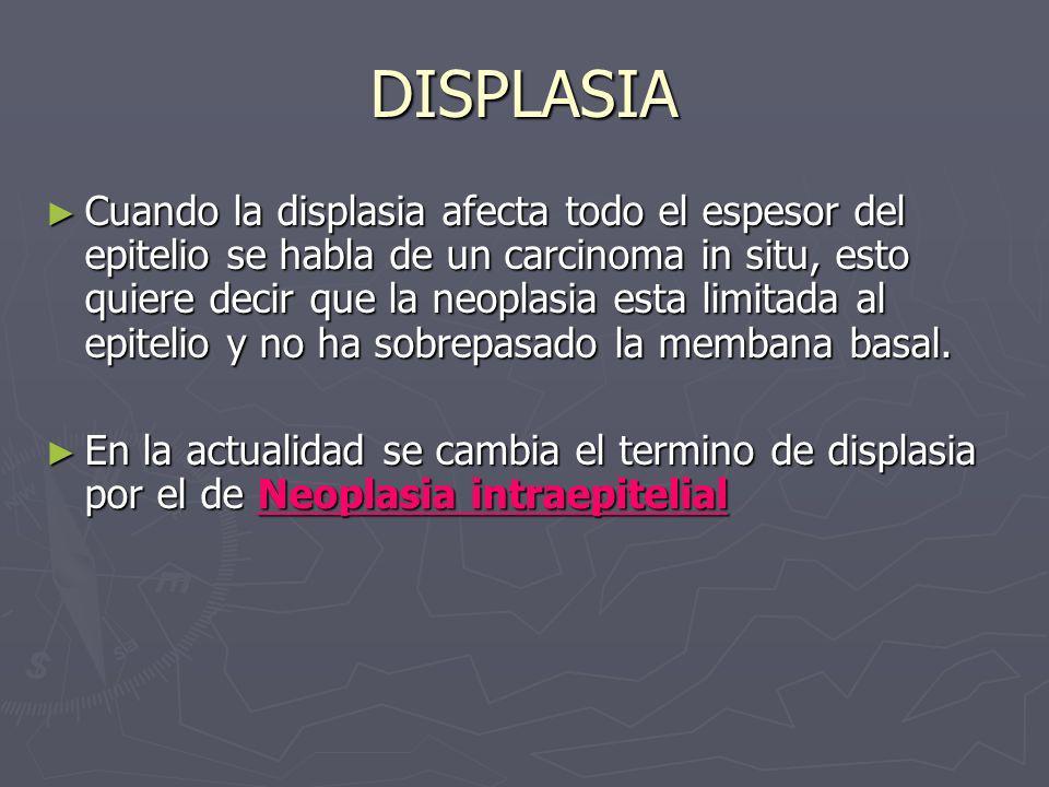 DISPLASIA Cuando la displasia afecta todo el espesor del epitelio se habla de un carcinoma in situ, esto quiere decir que la neoplasia esta limitada a
