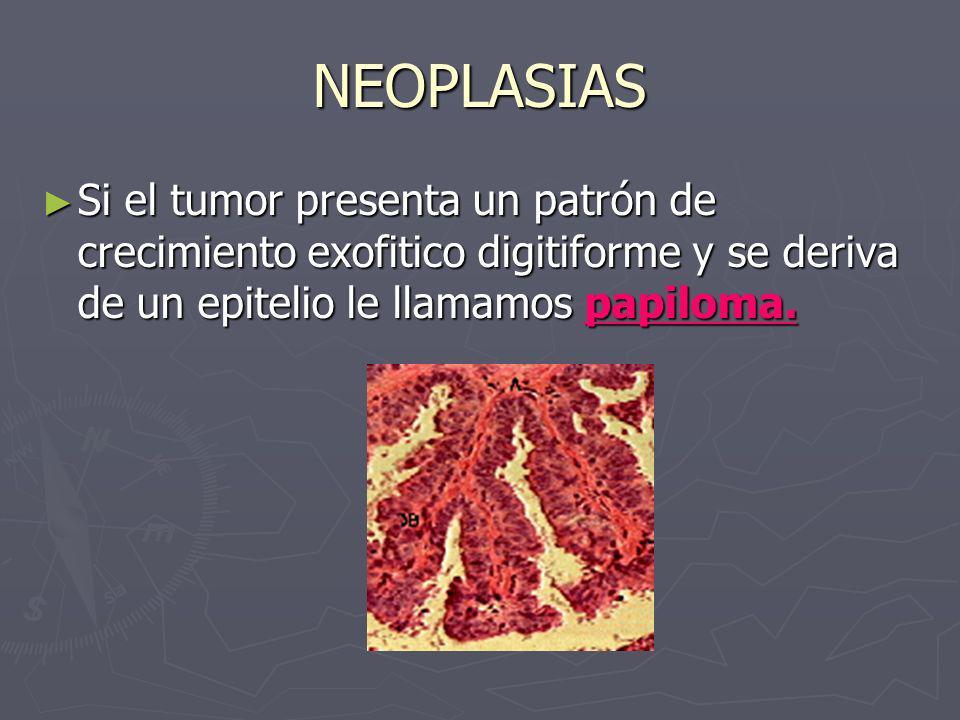 NEOPLASIAS Si el tumor presenta un patrón de crecimiento exofitico digitiforme y se deriva de un epitelio le llamamos papiloma. Si el tumor presenta u