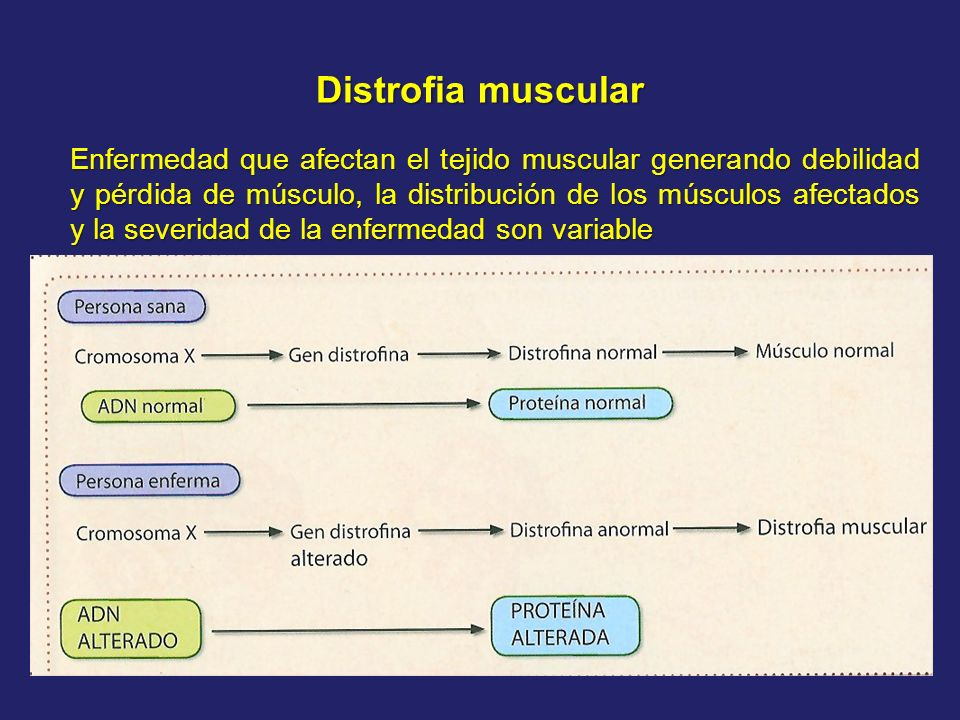 Distrofia muscular Enfermedad que afectan el tejido muscular generando debilidad y pérdida de músculo, la distribución de los músculos afectados y la