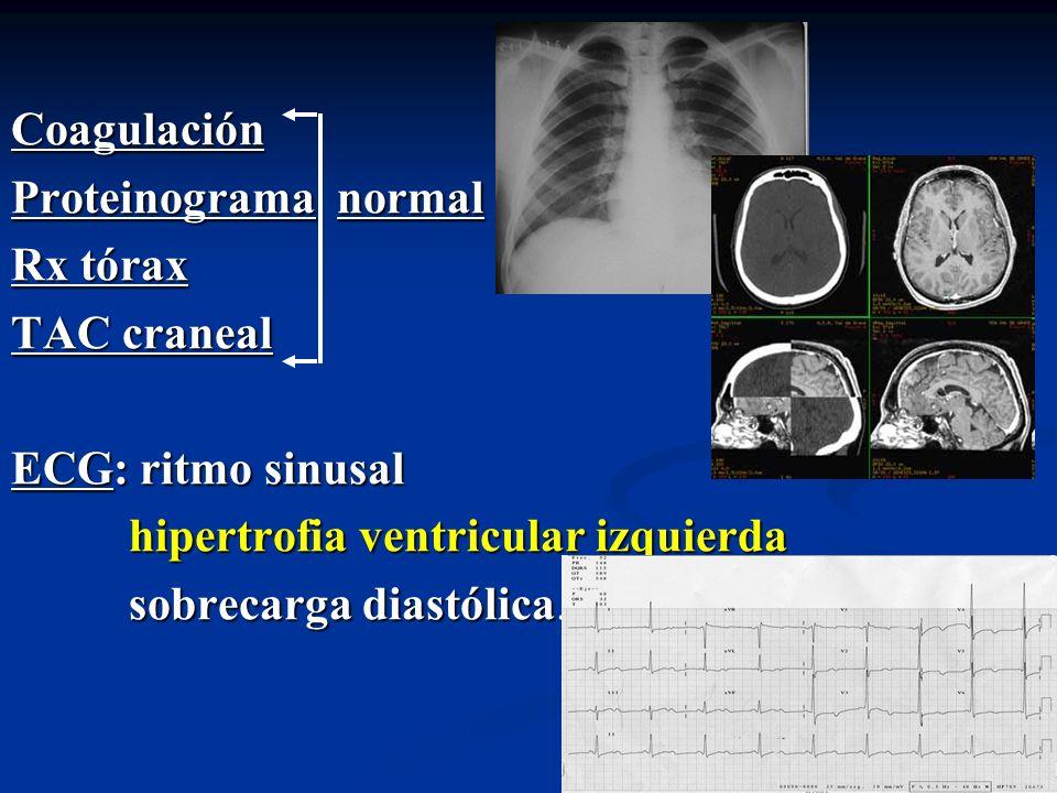 Coagulación Proteinograma normal Rx tórax TAC craneal ECG: ritmo sinusal hipertrofia ventricular izquierda hipertrofia ventricular izquierda sobrecarg