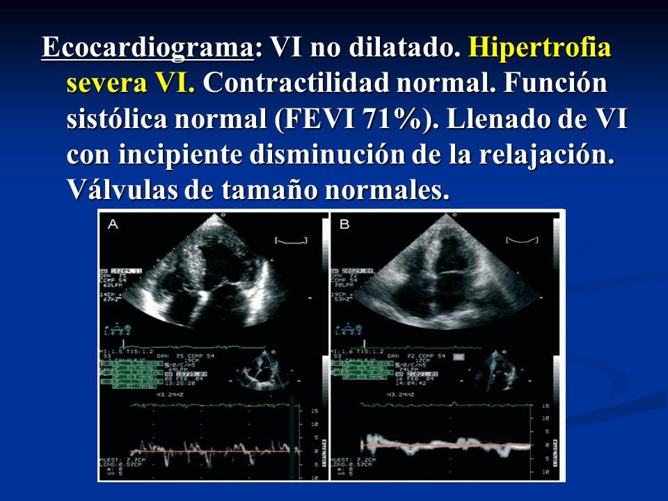 Ecocardiograma: VI no dilatado. Hipertrofia severa VI. Contractilidad normal. Función sistólica normal (FEVI 71%). Llenado de VI con incipiente dismin