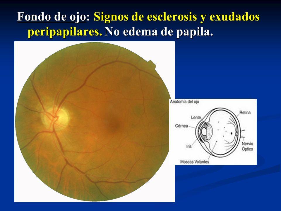 Fondo de ojo: Signos de esclerosis y exudados peripapilares. No edema de papila.