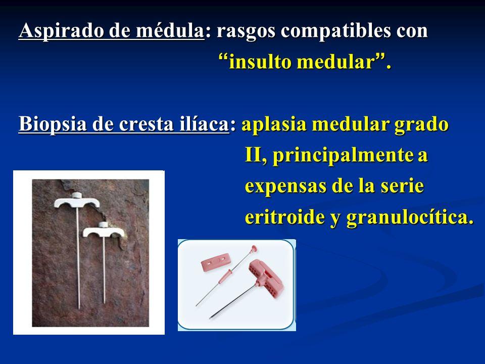 Aspirado de médula: rasgos compatibles con insulto medular. insulto medular. Biopsia de cresta ilíaca: aplasia medular grado II, principalmente a II,