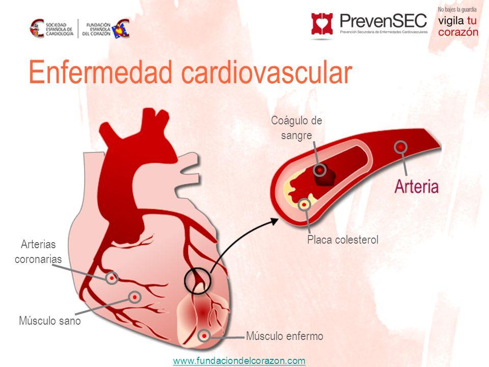 www.fundaciondelcorazon.com Enfermedad cardiovascular Placa colesterol Arterias coronarias Coágulo de sangre Músculo sano Músculo enfermo