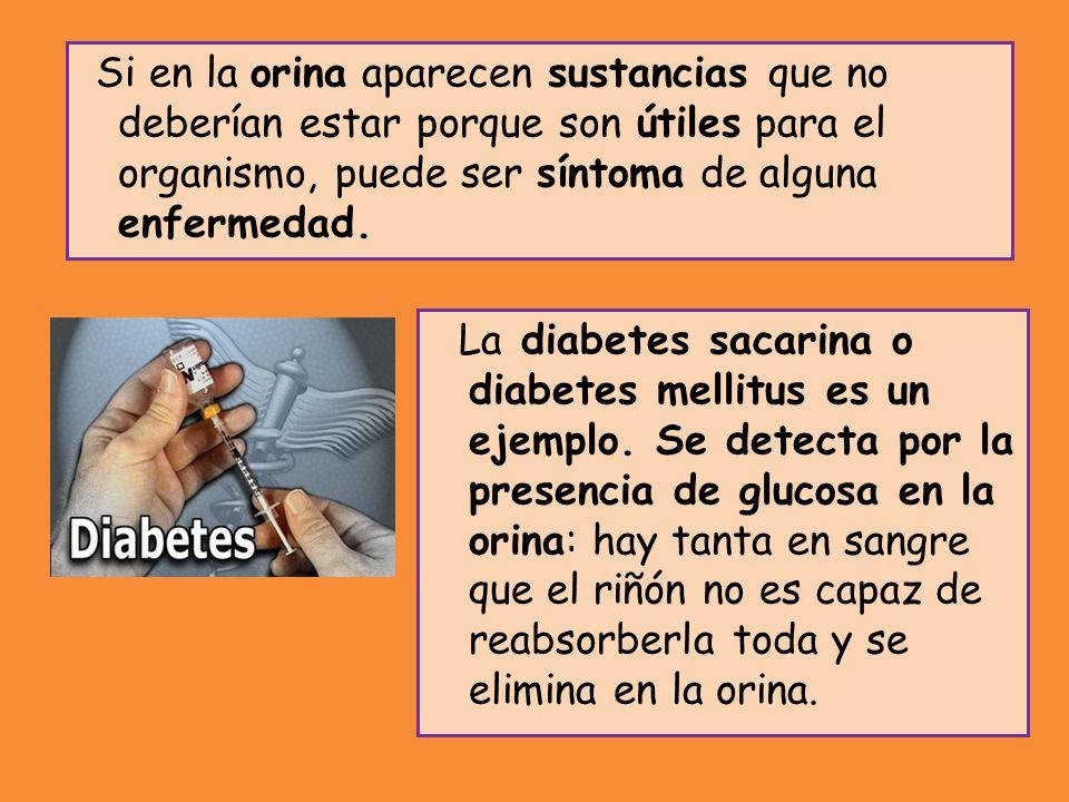 La diabetes sacarina o diabetes mellitus es un ejemplo. Se detecta por la presencia de glucosa en la orina: hay tanta en sangre que el riñón no es cap