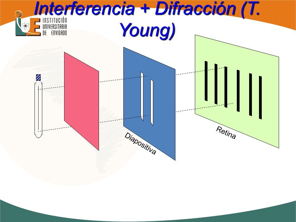 Diapositiva Retina