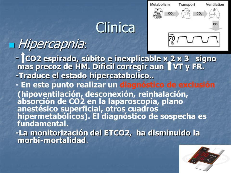 Clinica Hipercapnia : Hipercapnia : - CO2 espirado, súbito e inexplicable x 2 x 3 signo mas precoz de HM. Difícil corregir aun VT y FR. - CO2 espirado