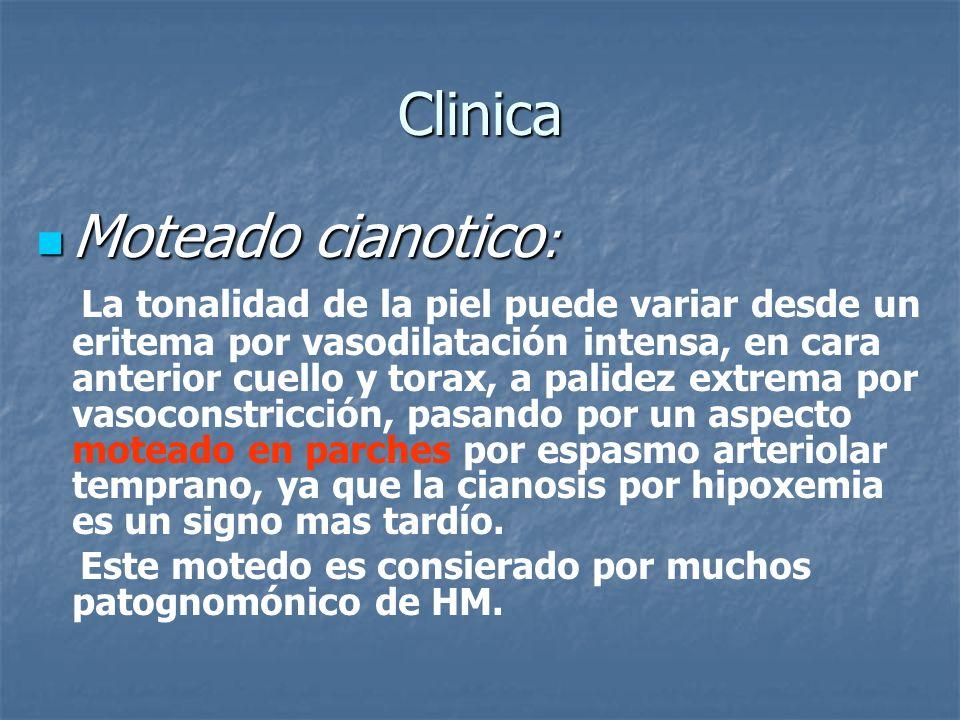 Clinica Moteado cianotico : Moteado cianotico : La tonalidad de la piel puede variar desde un eritema por vasodilatación intensa, en cara anterior cue