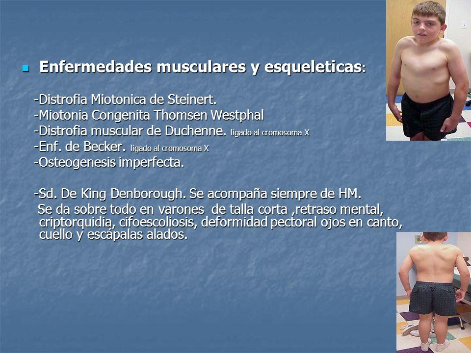 Enfermedades musculares y esqueleticas : Enfermedades musculares y esqueleticas : -Distrofia Miotonica de Steinert. -Distrofia Miotonica de Steinert.