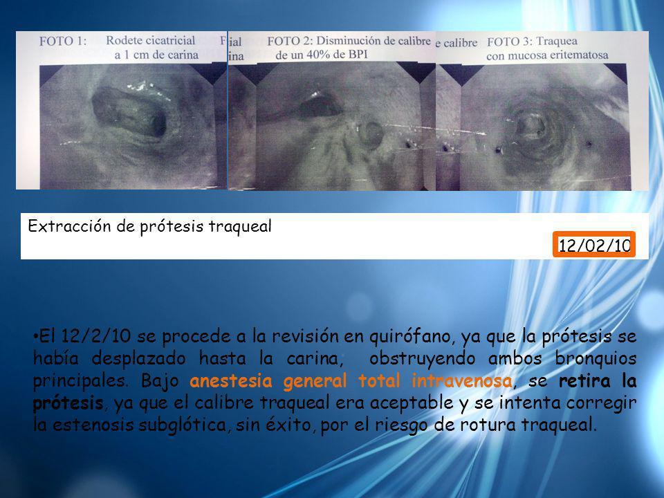 Extracción de prótesis traqueal 12/02/10 El 12/2/10 se procede a la revisión en quirófano, ya que la prótesis se había desplazado hasta la carina, obs