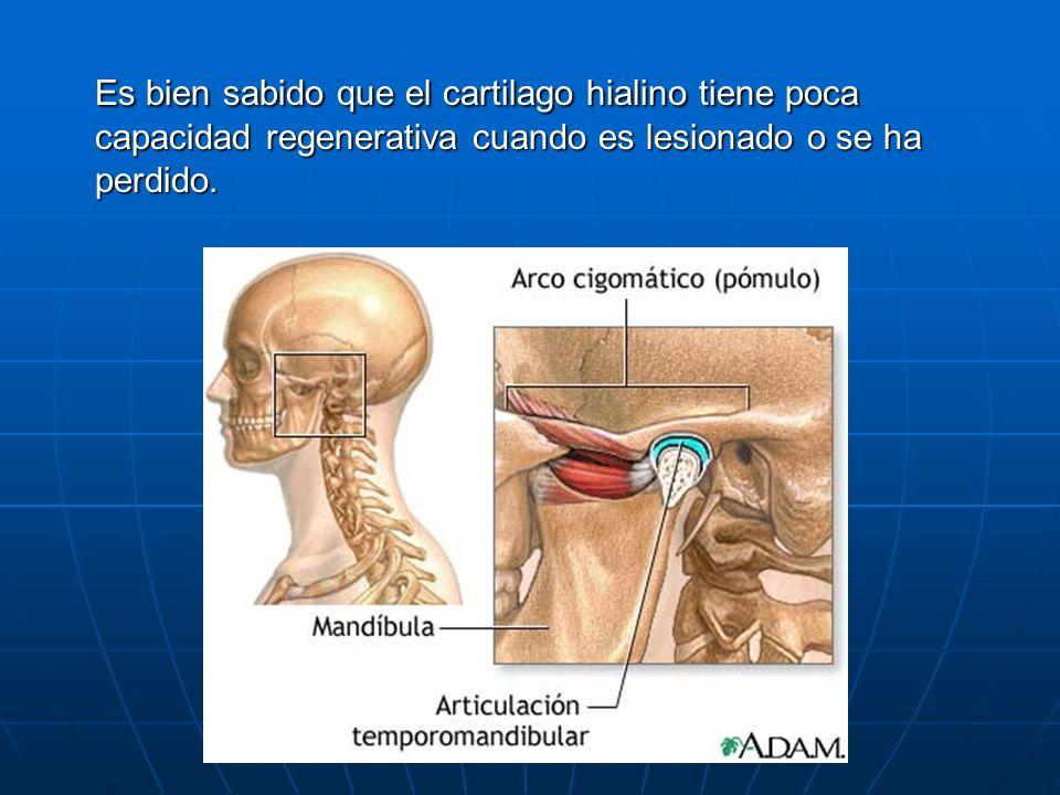 Es bien sabido que el cartilago hialino tiene poca capacidad regenerativa cuando es lesionado o se ha perdido.