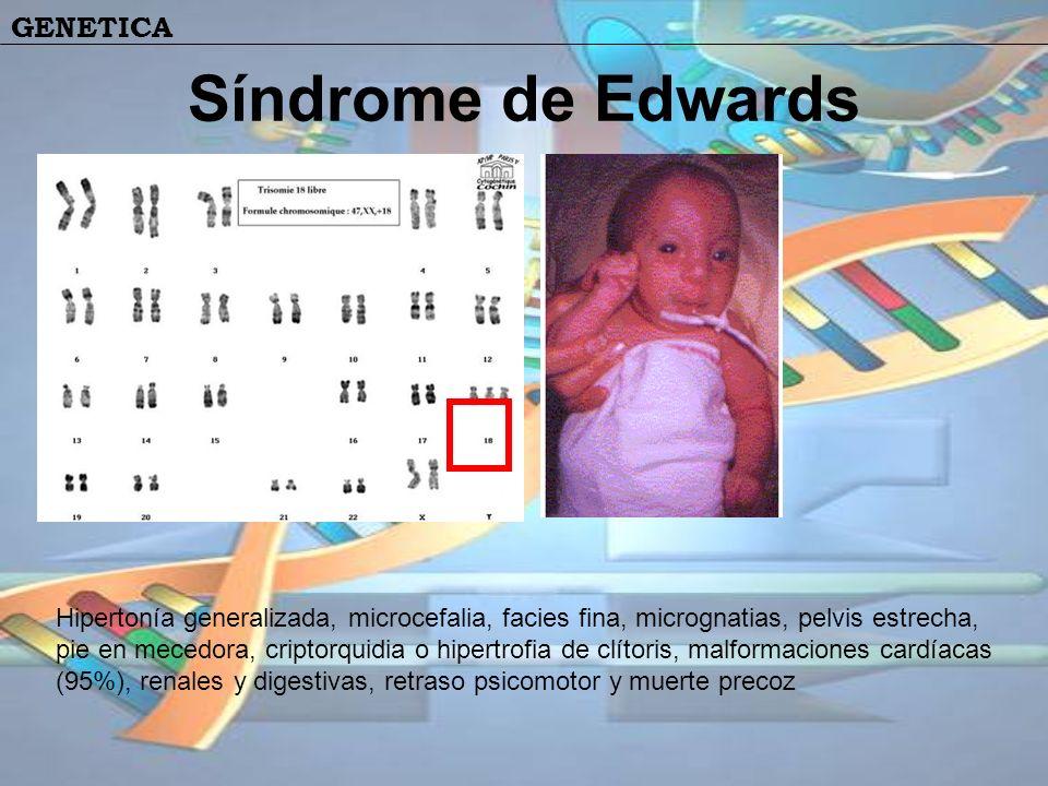 Síndrome de Edwards Hipertonía generalizada, microcefalia, facies fina, micrognatias, pelvis estrecha, pie en mecedora, criptorquidia o hipertrofia de