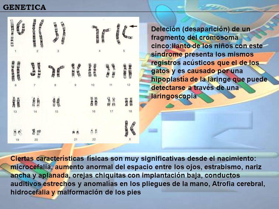 GENETICA Ciertas características físicas son muy significativas desde el nacimiento: microcefalia, aumento anormal del espacio entre los ojos, estrabi