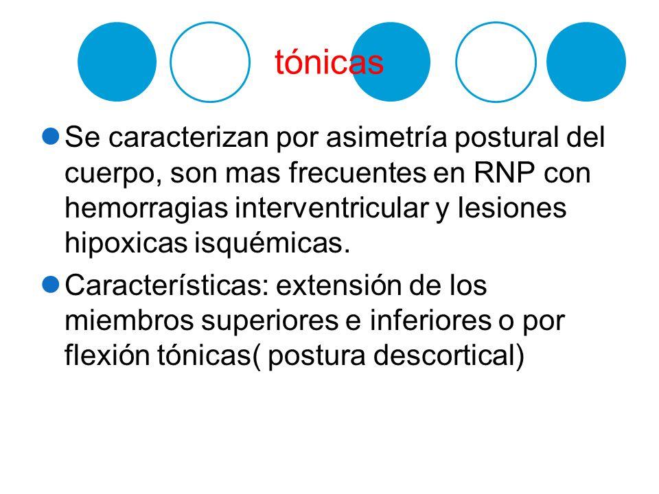 tónicas Se caracterizan por asimetría postural del cuerpo, son mas frecuentes en RNP con hemorragias interventricular y lesiones hipoxicas isquémicas.