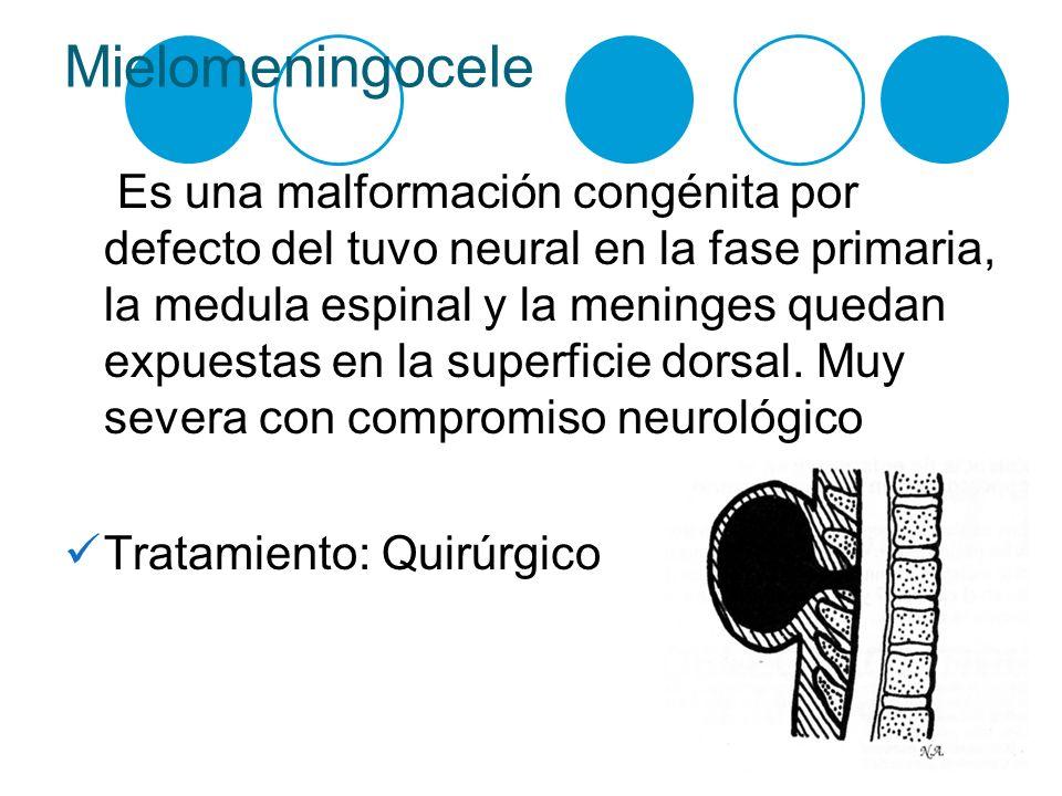Mielomeningocele Es una malformación congénita por defecto del tuvo neural en la fase primaria, la medula espinal y la meninges quedan expuestas en la