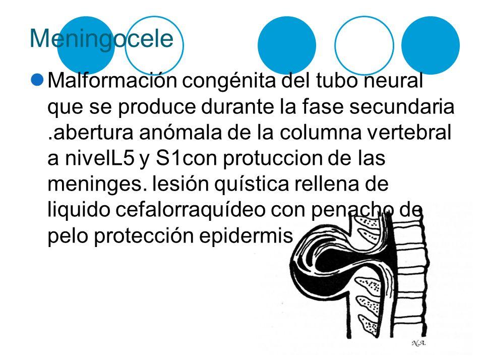 Meningocele Malformación congénita del tubo neural que se produce durante la fase secundaria.abertura anómala de la columna vertebral a nivelL5 y S1co