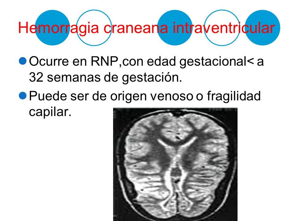 Hemorragia craneana intraventricular Ocurre en RNP,con edad gestacional< a 32 semanas de gestación. Puede ser de origen venoso o fragilidad capilar.