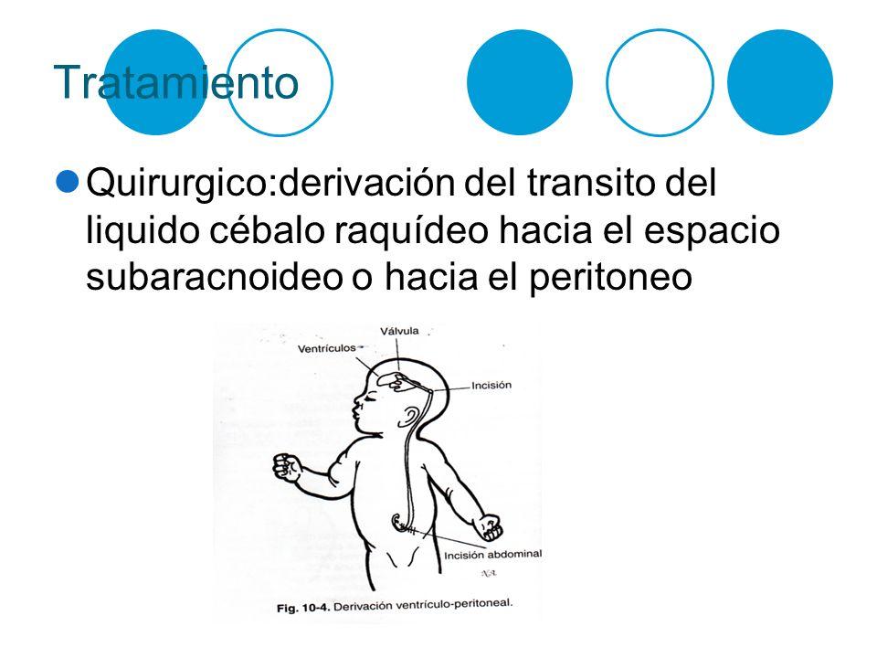 Tratamiento Quirurgico:derivación del transito del liquido cébalo raquídeo hacia el espacio subaracnoideo o hacia el peritoneo
