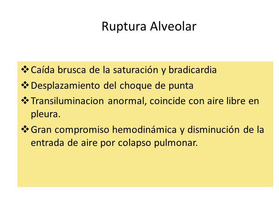Ruptura Alveolar Caída brusca de la saturación y bradicardia Desplazamiento del choque de punta Transiluminacion anormal, coincide con aire libre en p