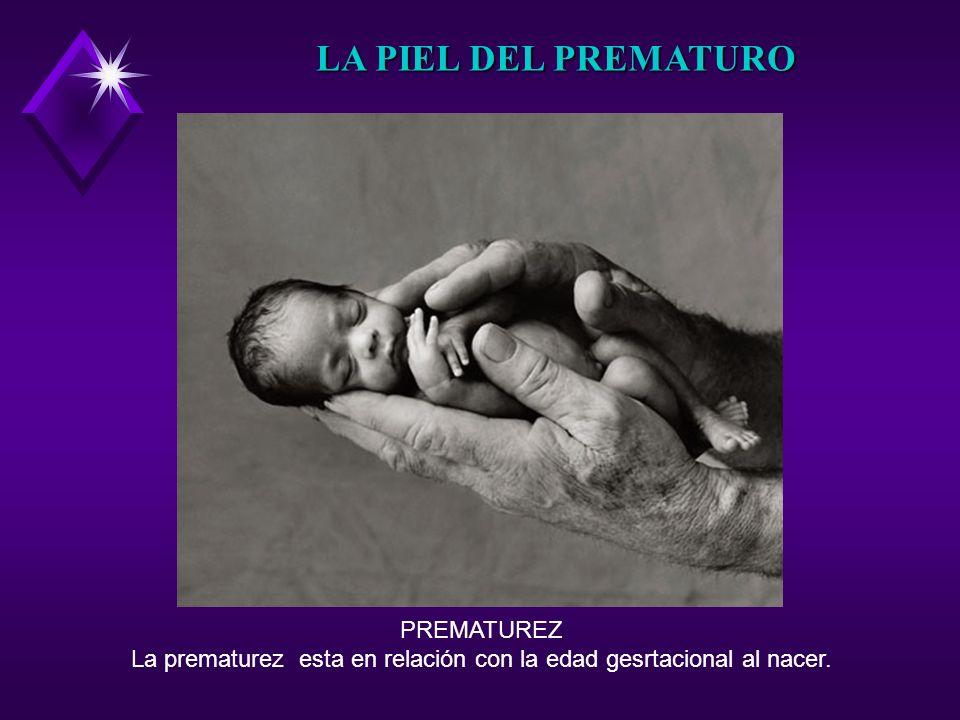 PREMATUREZ La prematurez esta en relación con la edad gesrtacional al nacer. LA PIEL DEL PREMATURO