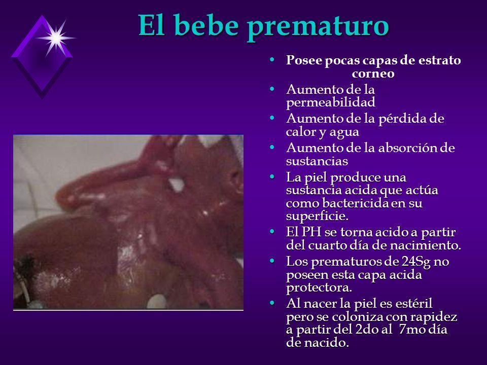 El bebe prematuro Posee pocas capas de estrato corneo Aumento de la permeabilidad Aumento de la pérdida de calor y agua Aumento de la absorción de sus
