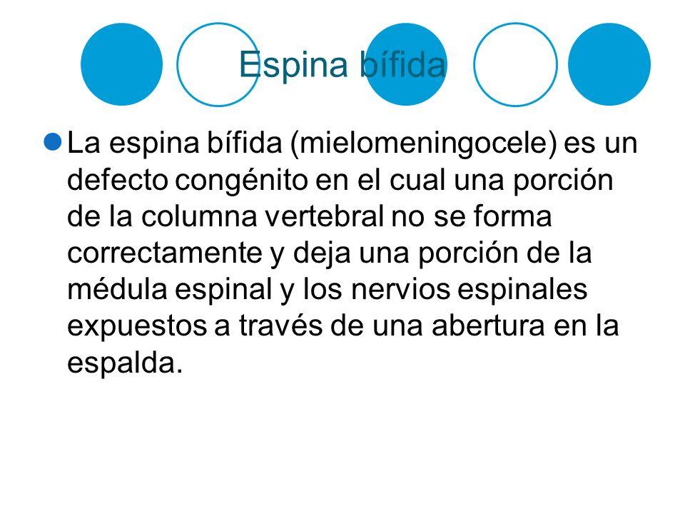 Espina bífida La espina bífida (mielomeningocele) es un defecto congénito en el cual una porción de la columna vertebral no se forma correctamente y d