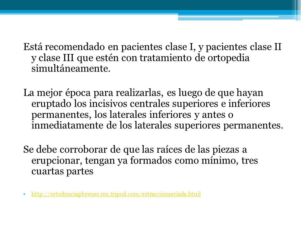 Está recomendado en pacientes clase I, y pacientes clase II y clase III que estén con tratamiento de ortopedia simultáneamente. La mejor época para re