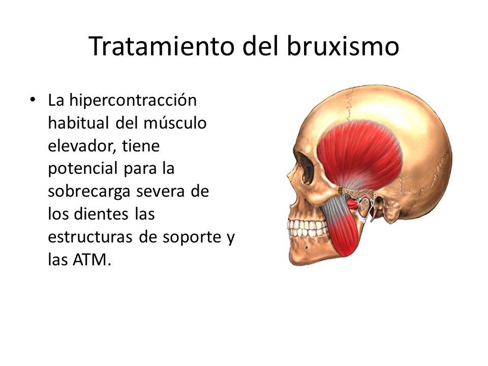 Tratamiento del bruxismo La hipercontracción habitual del músculo elevador, tiene potencial para la sobrecarga severa de los dientes las estructuras d