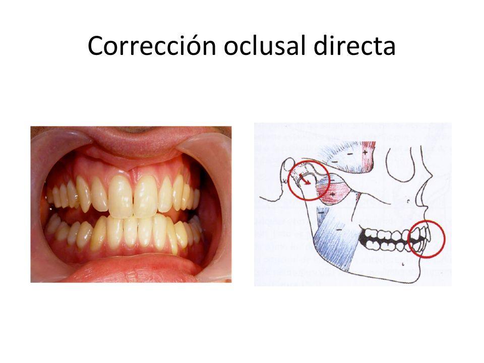 Corrección oclusal directa