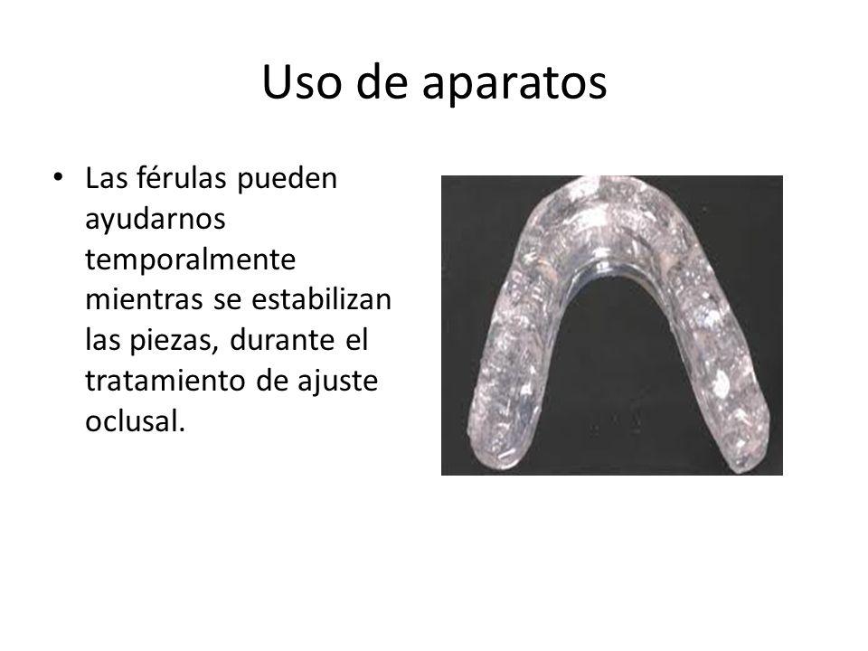 Uso de aparatos Las férulas pueden ayudarnos temporalmente mientras se estabilizan las piezas, durante el tratamiento de ajuste oclusal.