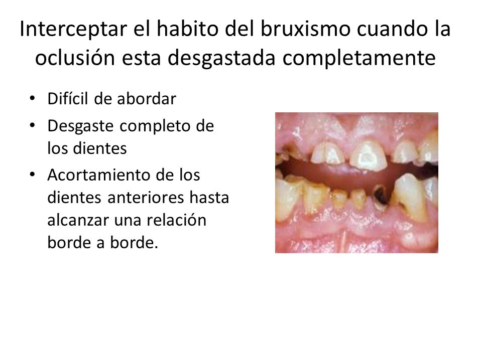 Interceptar el habito del bruxismo cuando la oclusión esta desgastada completamente Difícil de abordar Desgaste completo de los dientes Acortamiento d