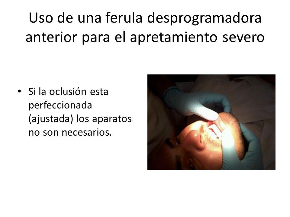 Uso de una ferula desprogramadora anterior para el apretamiento severo Si la oclusión esta perfeccionada (ajustada) los aparatos no son necesarios.