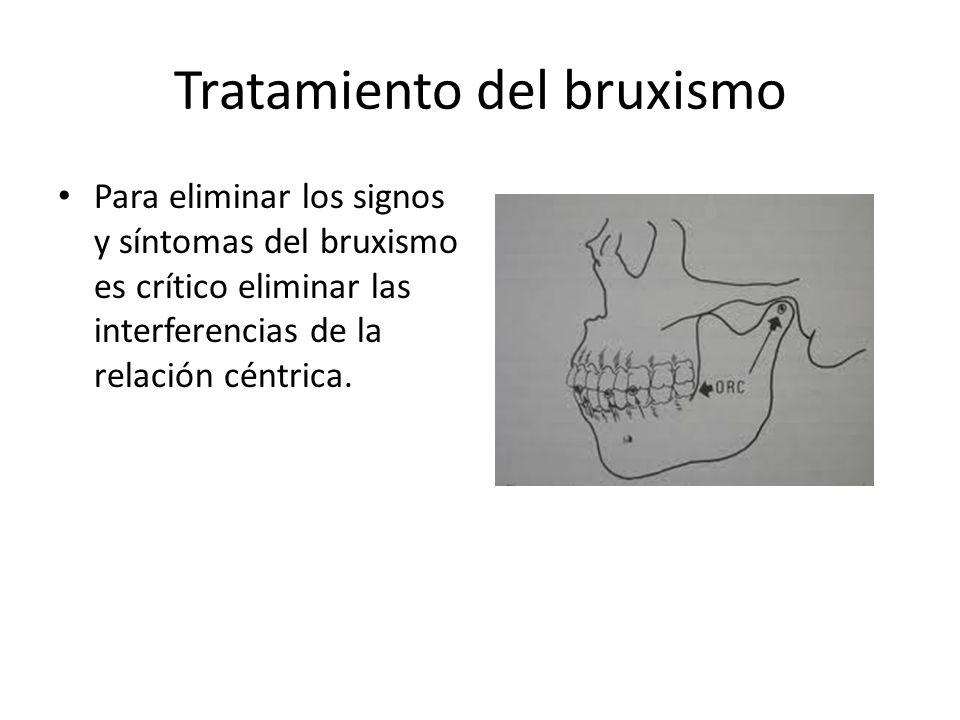 Tratamiento del bruxismo Para eliminar los signos y síntomas del bruxismo es crítico eliminar las interferencias de la relación céntrica.