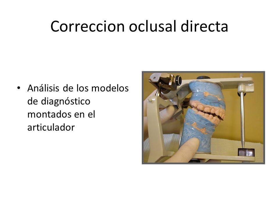 Correccion oclusal directa Análisis de los modelos de diagnóstico montados en el articulador
