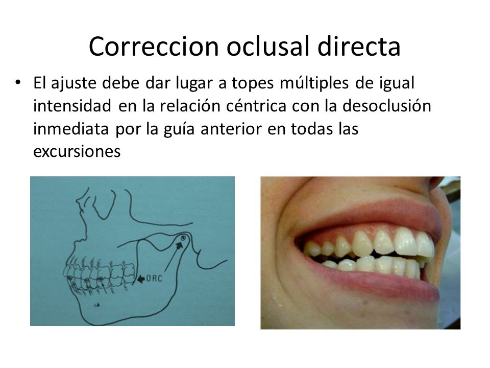 Correccion oclusal directa El ajuste debe dar lugar a topes múltiples de igual intensidad en la relación céntrica con la desoclusión inmediata por la