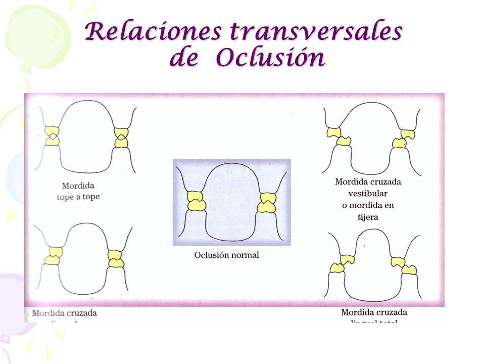 Relaciones transversales de Oclusión