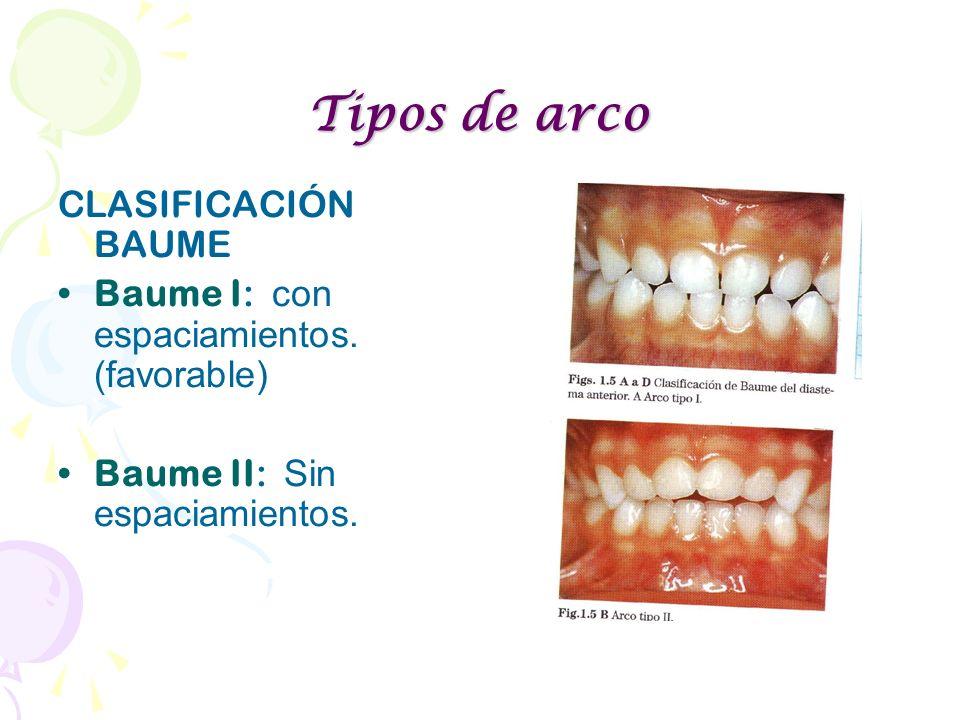 Tipos de arco CLASIFICACIÓN BAUME Baume I: con espaciamientos. (favorable) Baume II: Sin espaciamientos.