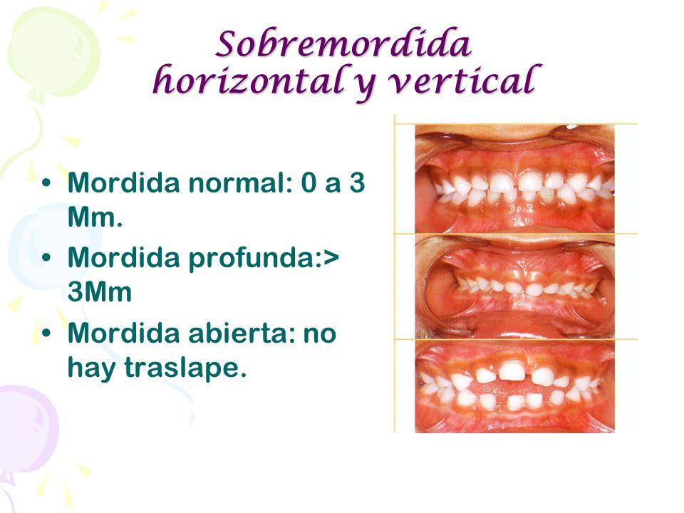 Sobremordida horizontal y vertical Mordida normal: 0 a 3 Mm. Mordida profunda:> 3Mm Mordida abierta: no hay traslape.