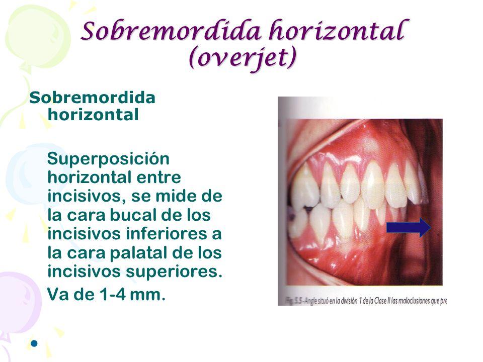 Sobremordida horizontal (overjet) Sobremordida horizontal Superposición horizontal entre incisivos, se mide de la cara bucal de los incisivos inferior