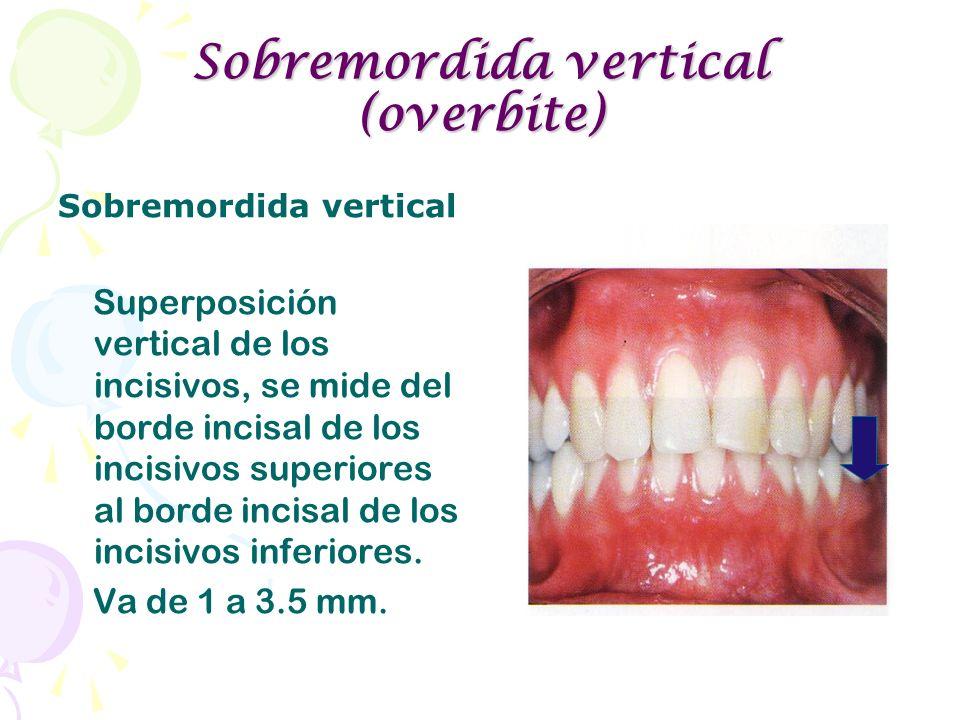 Sobremordida vertical (overbite) Sobremordida vertical Superposición vertical de los incisivos, se mide del borde incisal de los incisivos superiores