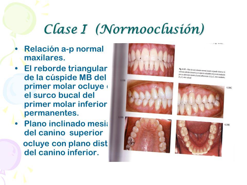 Clase I (Normooclusión) Relación a-p normal maxilares. El reborde triangular de la cúspide MB del primer molar ocluye en el surco bucal del primer mol