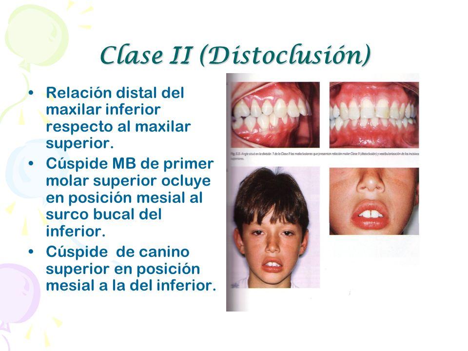 Clase II (Distoclusión) Relación distal del maxilar inferior respecto al maxilar superior. Cúspide MB de primer molar superior ocluye en posición mesi