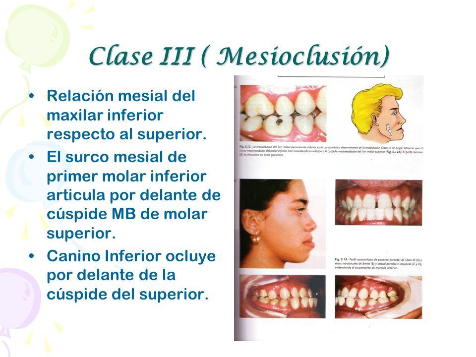 Clase III ( Mesioclusión) Relación mesial del maxilar inferior respecto al superior. El surco mesial de primer molar inferior articula por delante de