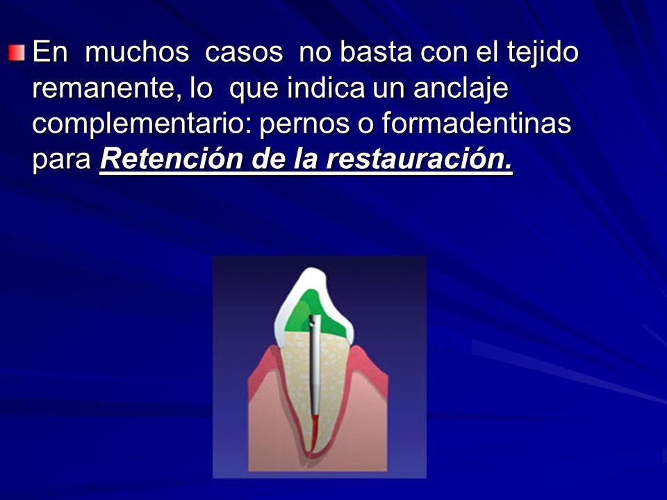 En muchos casos no basta con el tejido remanente, lo que indica un anclaje complementario: pernos o formadentinas para Retención de la restauración.