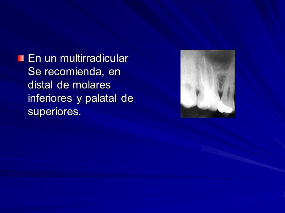 En un multirradicular Se recomienda, en distal de molares inferiores y palatal de superiores.